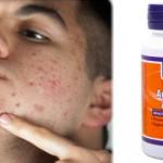 Suplimente pentru acnee